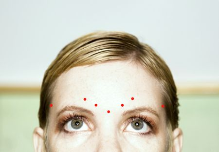 Typical Botox injection sites for migraine